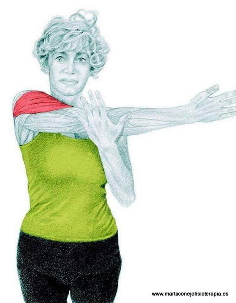 Fisioterapia En Las Lesiones De Hombro